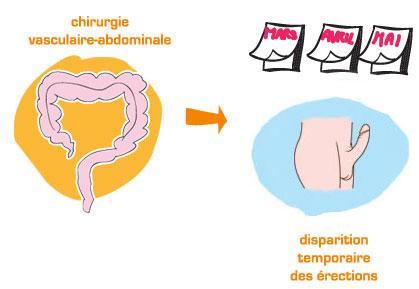 Autres chirurgies, causes de déclenchement de la dysfonction érectile