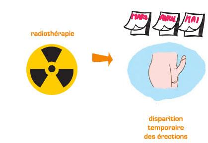 L'une des causes possibles de la dysfonction érectile : les effets de la radiothérapie