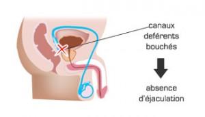 Conséquences de la prostatectomie